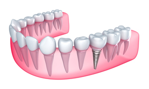 Dental Implants Malden, MA